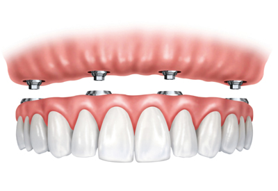 Implant Supported Dentures in Winter Park, FL